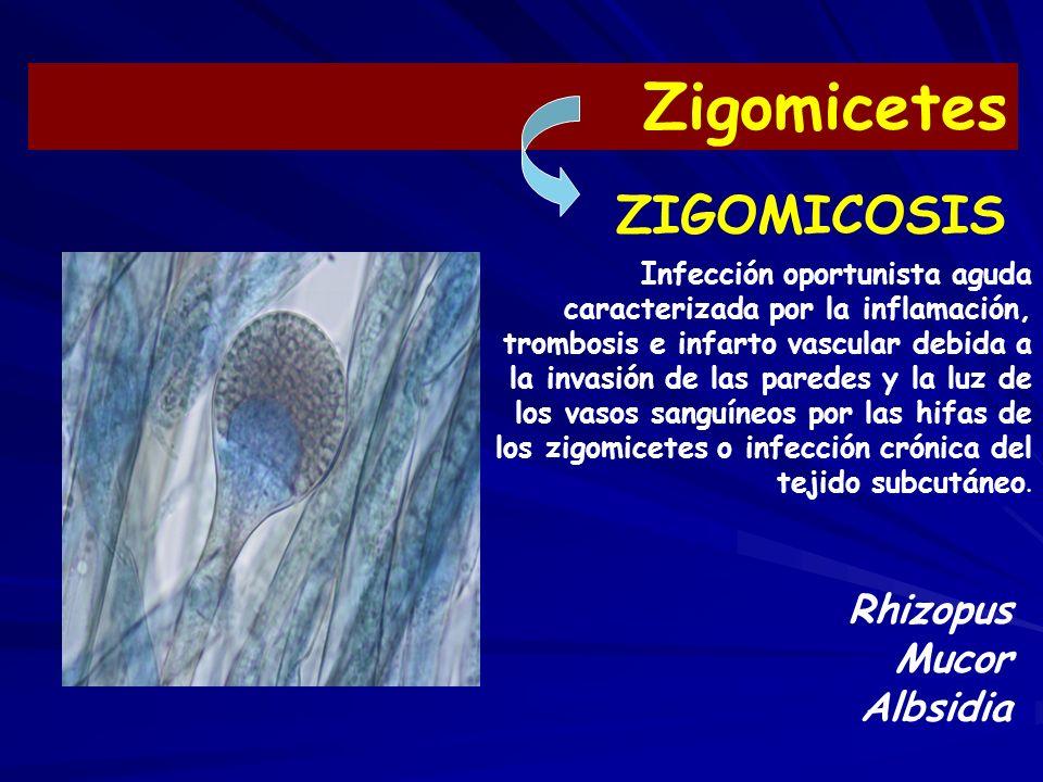 Zigomicetes Rhizopus Mucor Albsidia Infección oportunista aguda caracterizada por la inflamación, trombosis e infarto vascular debida a la invasión de las paredes y la luz de los vasos sanguíneos por las hifas de los zigomicetes o infección crónica del tejido subcutáneo.