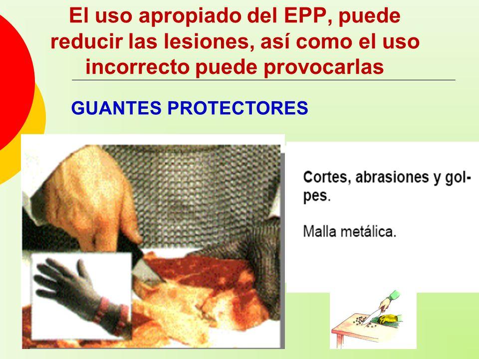 El uso apropiado del EPP, puede reducir las lesiones, así como el uso incorrecto puede provocarlas GUANTES PROTECTORES