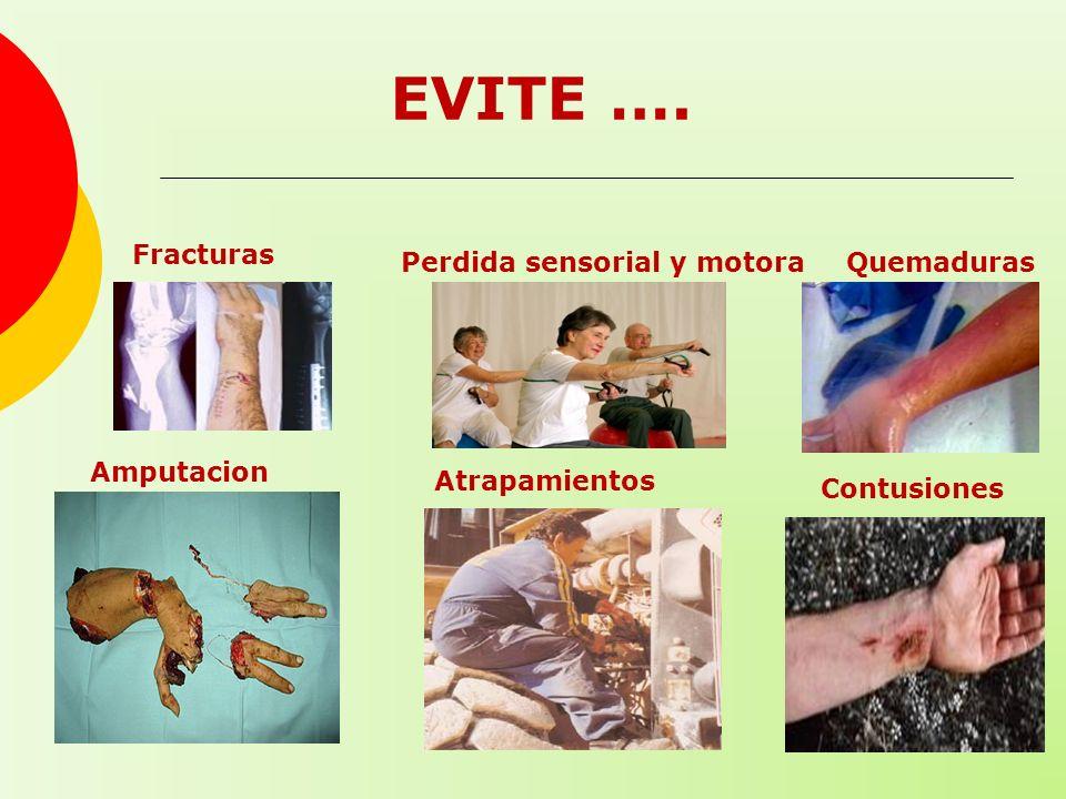 EVITE …. Fracturas Amputacion es Quemaduras Atrapamientos Contusiones Perdida sensorial y motora
