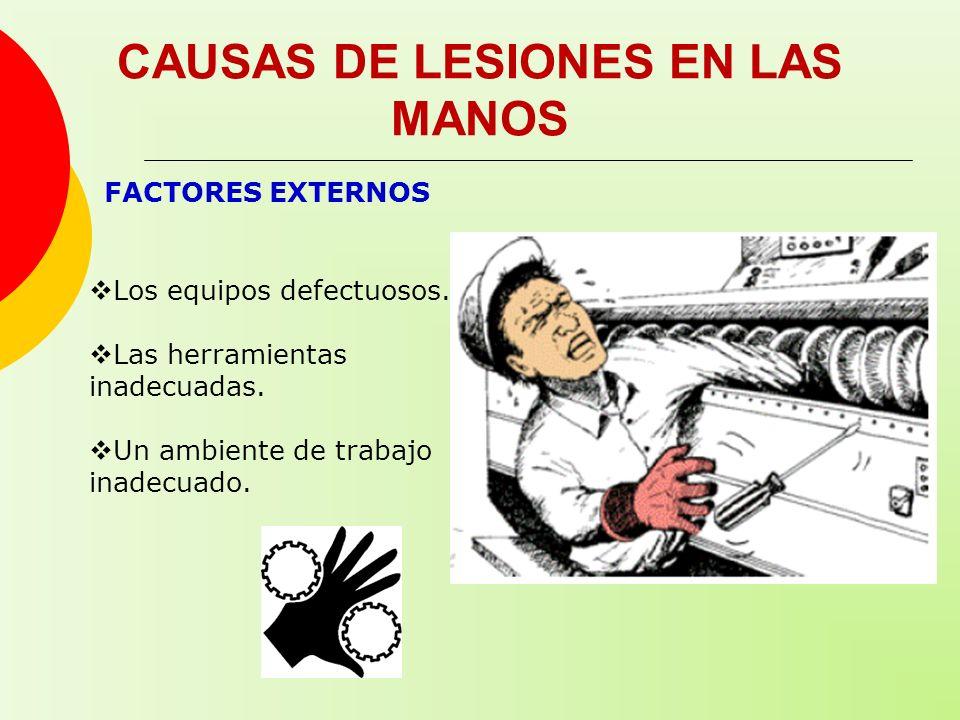CAUSAS DE LESIONES EN LAS MANOS FACTORES EXTERNOS Los equipos defectuosos. Las herramientas inadecuadas. Un ambiente de trabajo inadecuado.