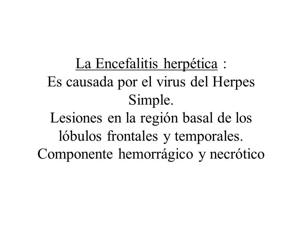 La Encefalitis herpética : Es causada por el virus del Herpes Simple. Lesiones en la región basal de los lóbulos frontales y temporales. Componente he