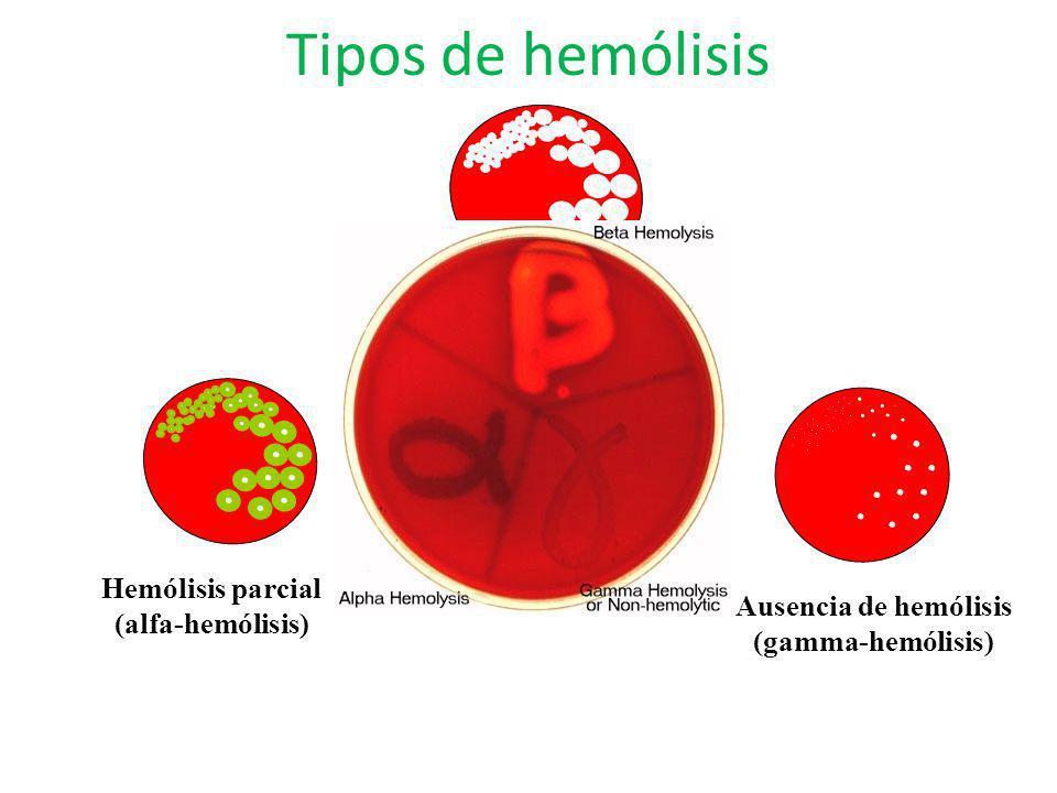 Tipos de hemólisis Hemólisis parcial (alfa-hemólisis) Hemólisis total (beta-hemólisis) Ausencia de hemólisis (gamma-hemólisis)