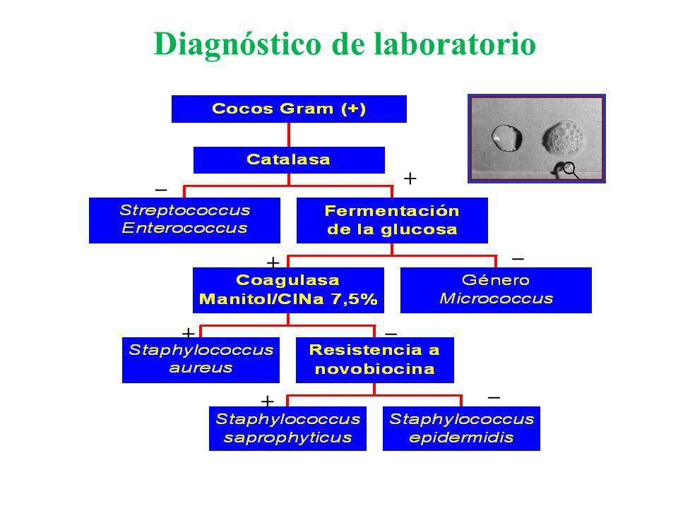 Diagnóstico de laboratorio + _+ + + _ _ _