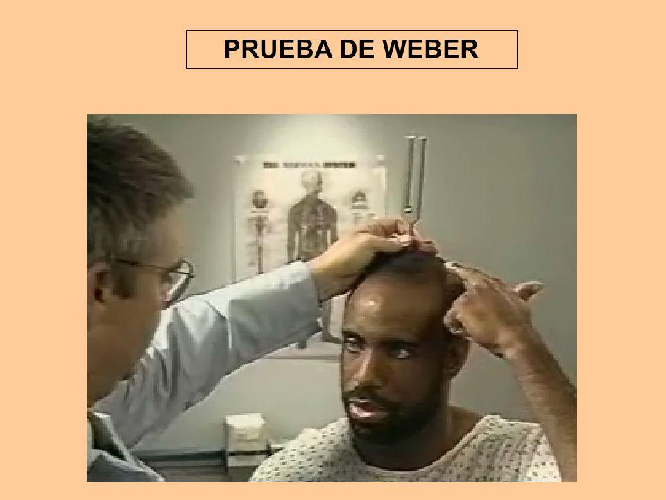 PRUEBA DE WEBER