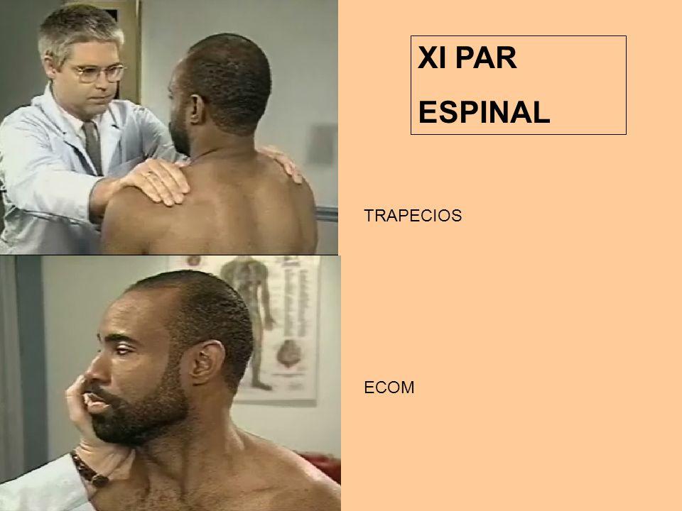 XI PAR ESPINAL ECOM TRAPECIOS