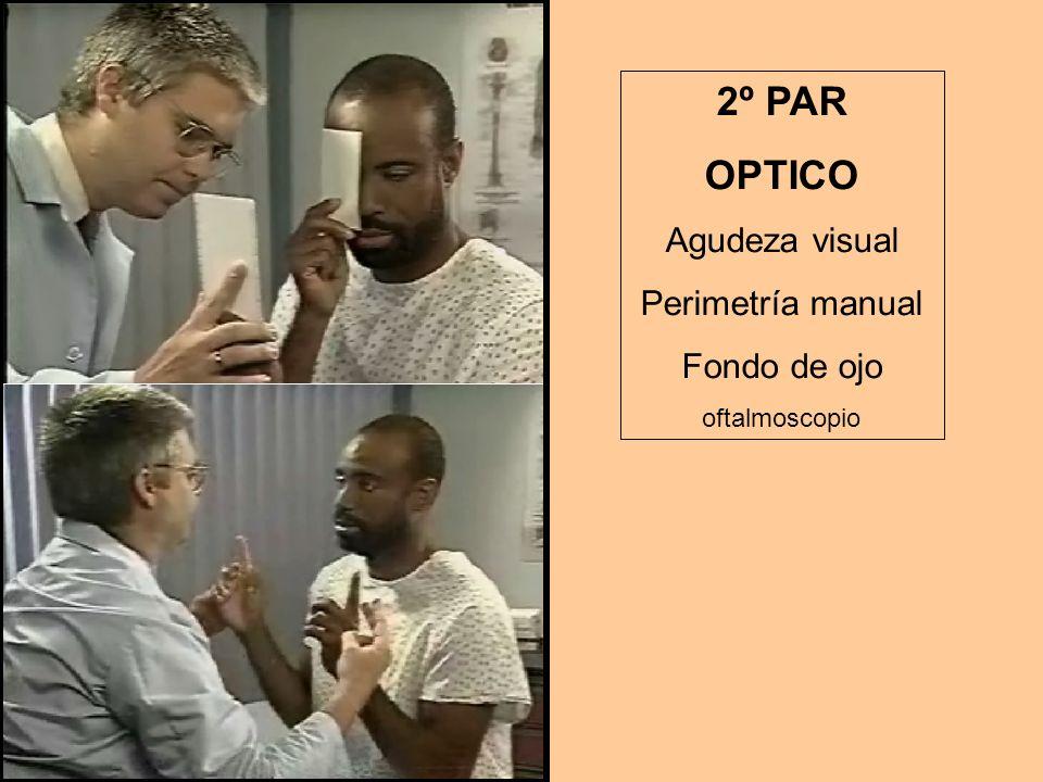 2º PAR OPTICO Agudeza visual Perimetría manual Fondo de ojo oftalmoscopio