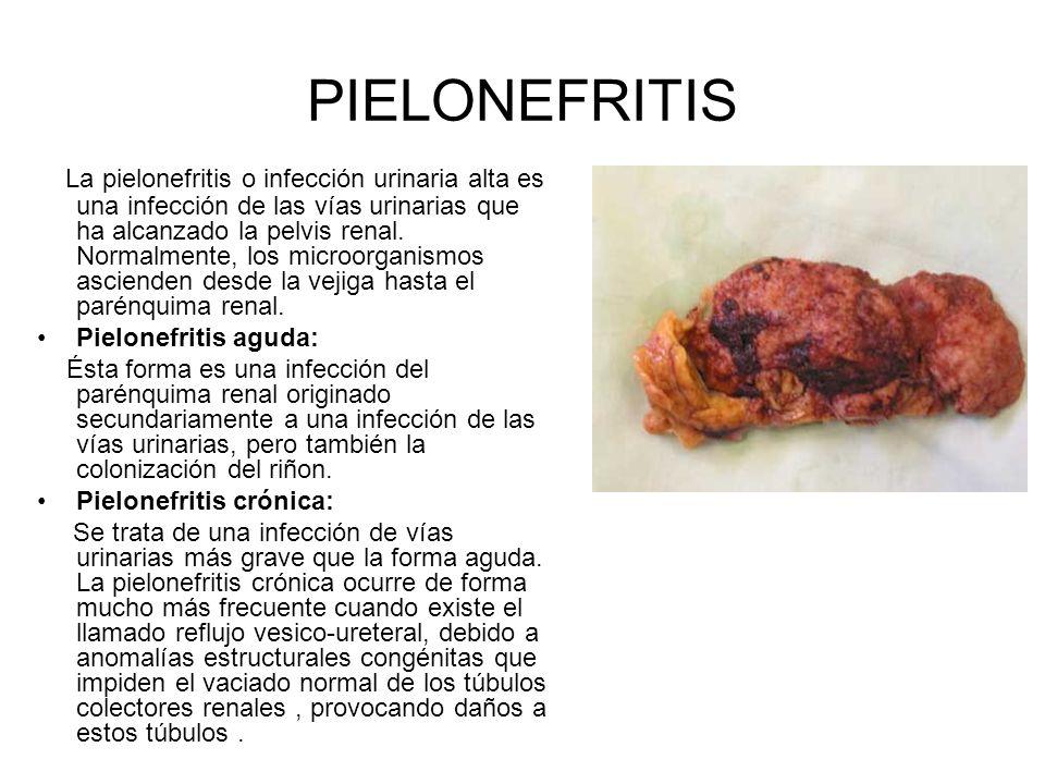PIELONEFRITIS La pielonefritis o infección urinaria alta es una infección de las vías urinarias que ha alcanzado la pelvis renal. Normalmente, los mic