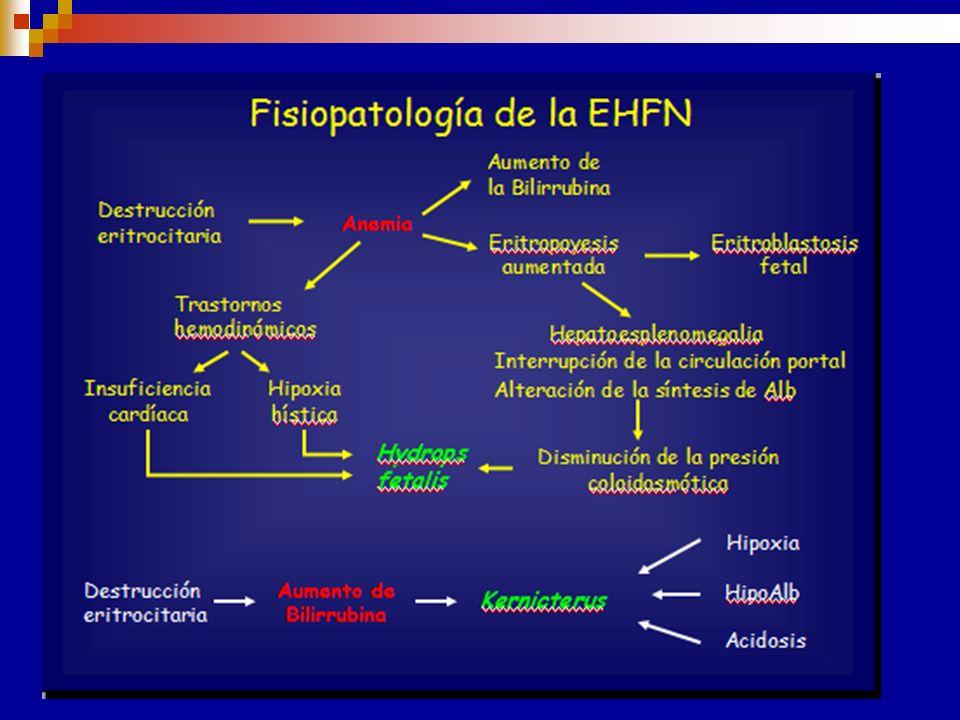 CAUSAS DE EHFN Incompatibilidad de grupo sanguíneo materno fetal Aloinmunización materna específica contra un determinado Ag fetal. Paso de Acs matern