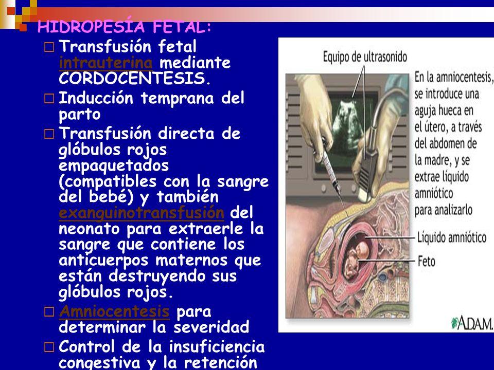 T T O FETAL Transfusión fetal intrauterina HTO 30 % 24---26 sem de gestación Sangre : < de 96 hs de extraída exenta de plasma y capa leucoplaquetaria