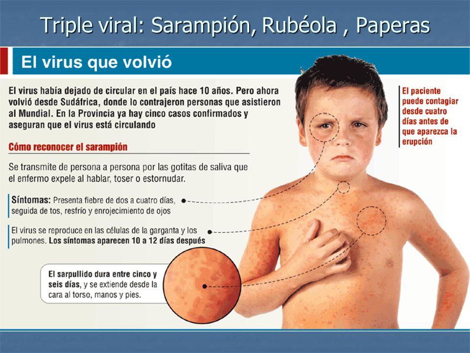 Triple viral: Sarampión, Rubéola, Paperas