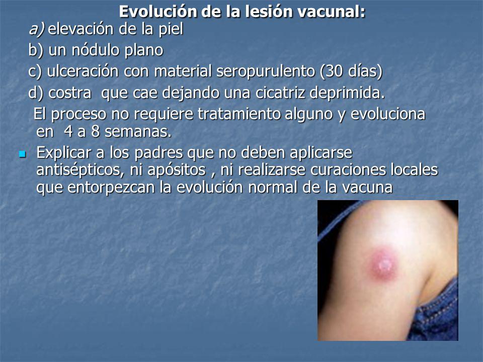 a) elevación de la piel a) elevación de la piel b) un nódulo plano b) un nódulo plano c) ulceración con material seropurulento (30 días) c) ulceración