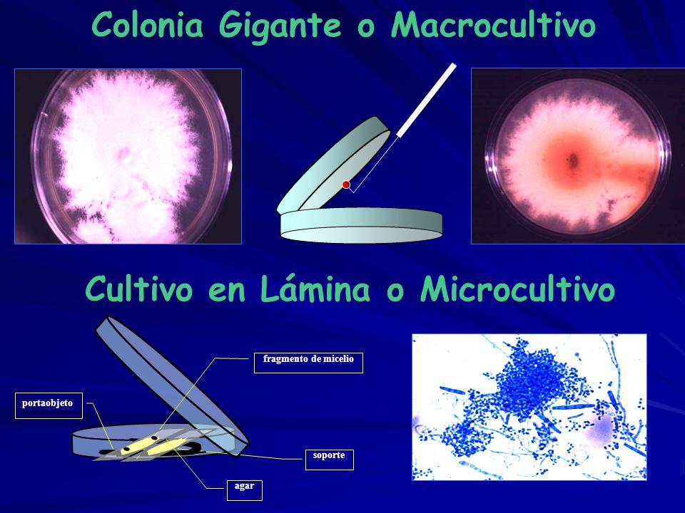 Colonia Gigante o Macrocultivo Cultivo en Lámina o Microcultivo soporte fragmento de micelio portaobjeto agar