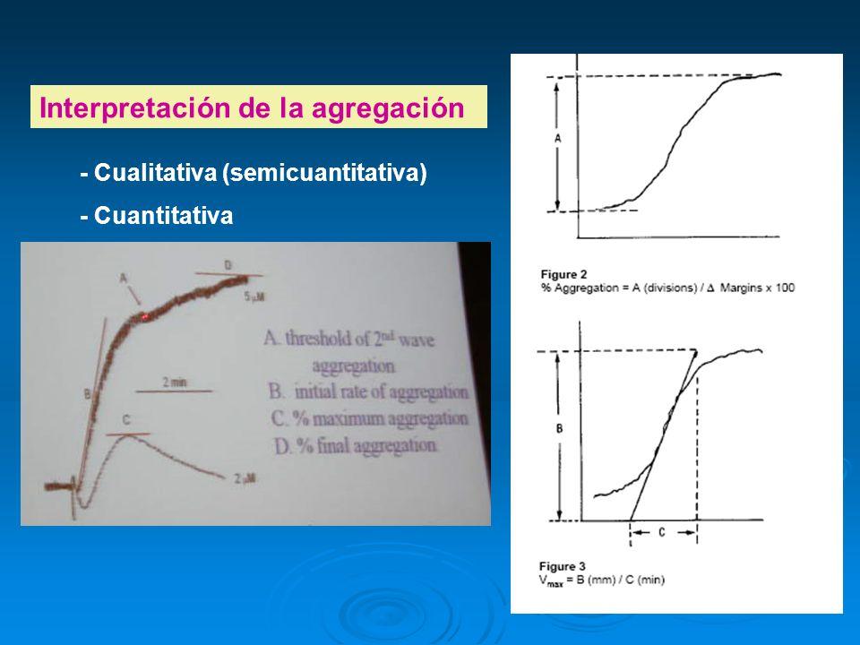 Interpretación de la agregación - Cualitativa (semicuantitativa) - Cuantitativa