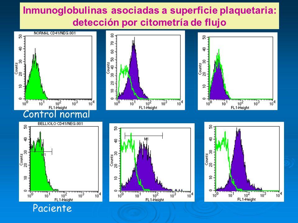Paciente Control normal Negativo 3 IFM IgG 10 IFM IgG 34 IFM IgM 3 IFM IgM 31 IFM Negativo 3 IFM Inmunoglobulinas asociadas a superficie plaquetaria: