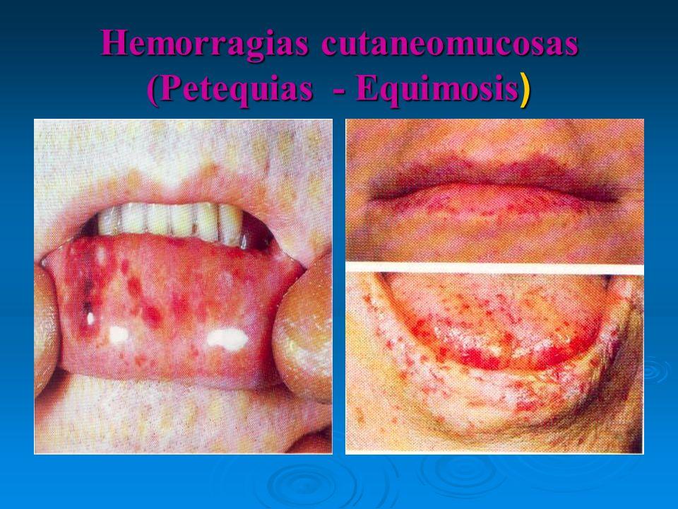 Hemorragias cutaneomucosas (Petequias - Equimosis )