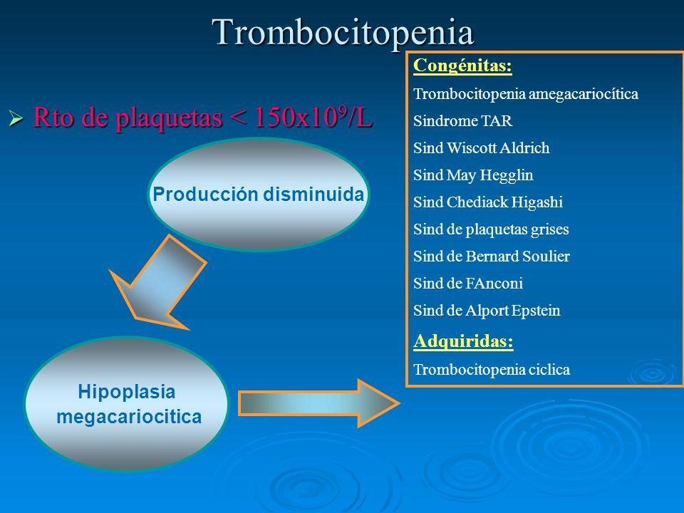Trombocitopenia Rto de plaquetas < 150x10 9 /L Rto de plaquetas < 150x10 9 /L Producción disminuida Hipoplasia megacariocitica Congénitas: Trombocitop