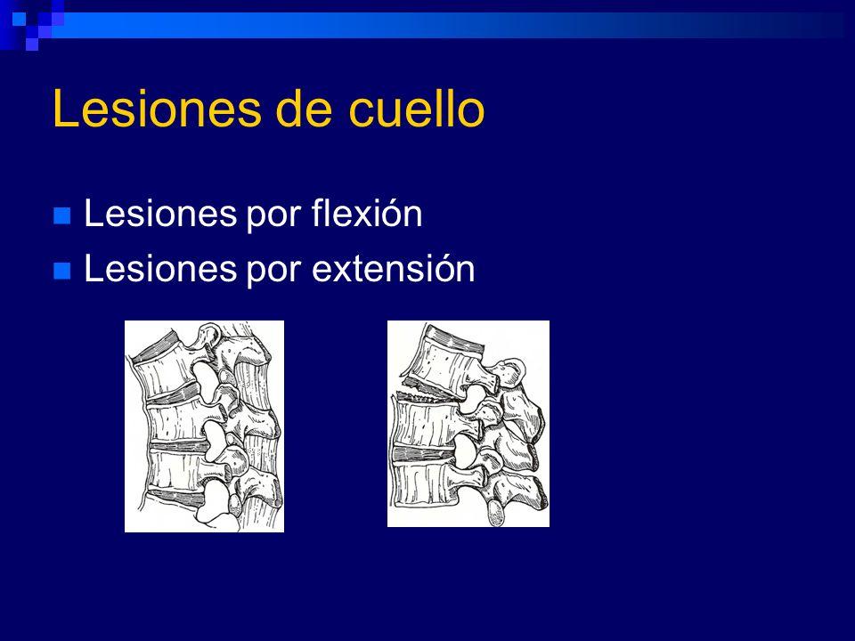 Lesiones de cuello Lesiones por flexión Lesiones por extensión