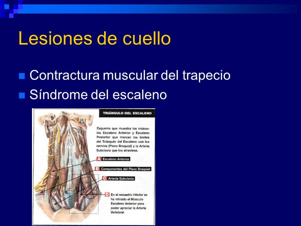 Lesiones de cuello Contractura muscular del trapecio Síndrome del escaleno