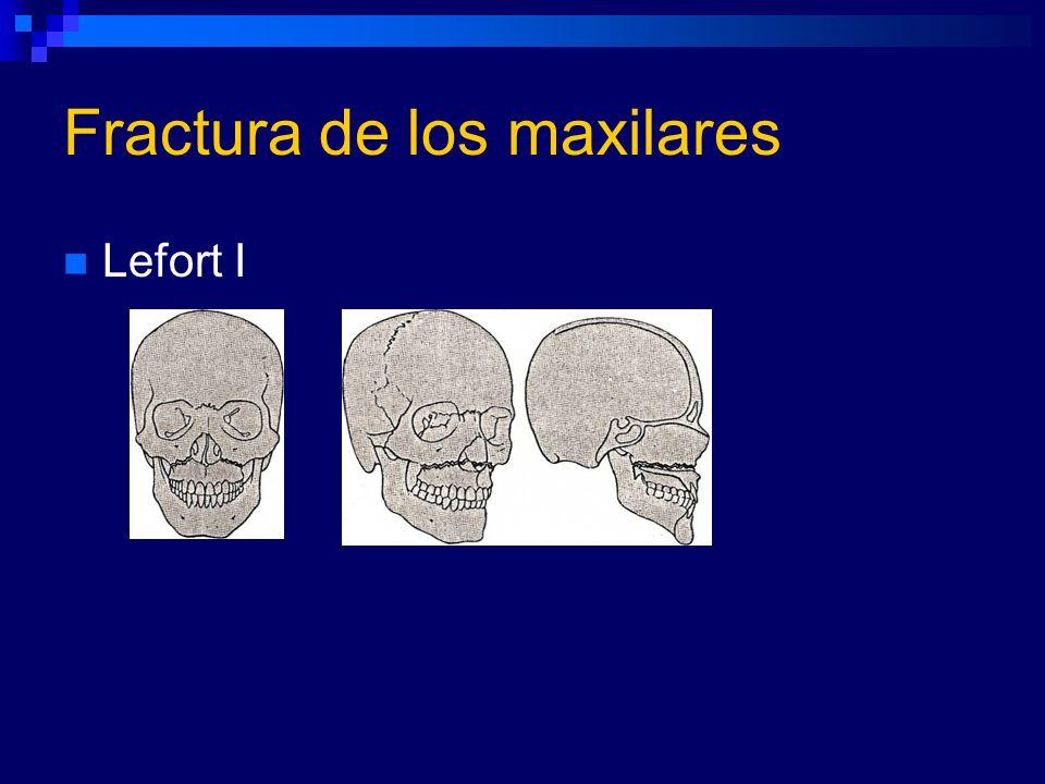 Fractura de los maxilares Lefort I