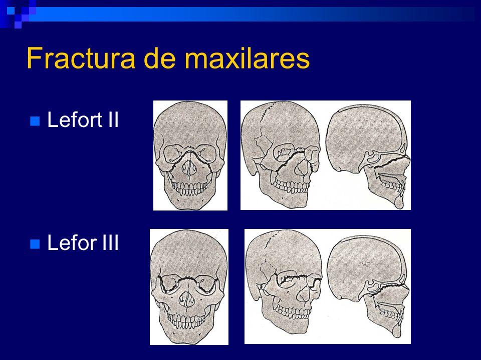 Fractura de maxilares Lefort II Lefor III