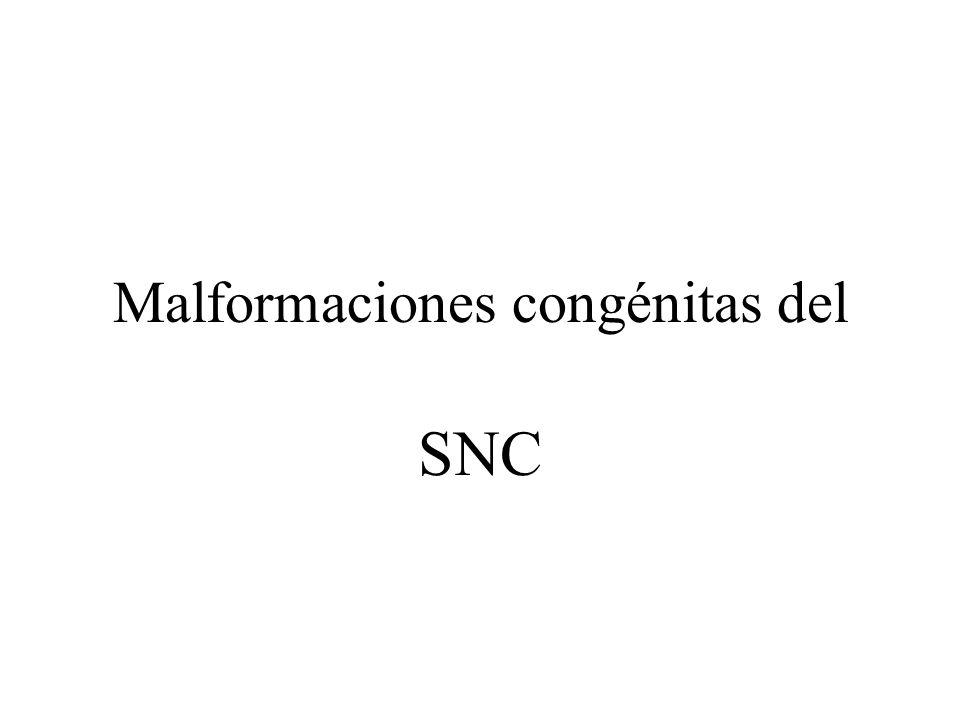 Malformaciones congénitas del SNC
