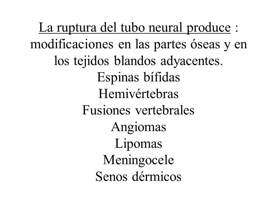 La ruptura del tubo neural produce : modificaciones en las partes óseas y en los tejidos blandos adyacentes. Espinas bífidas Hemivértebras Fusiones ve