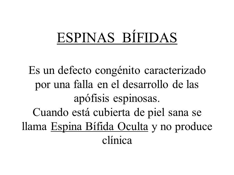 ESPINAS BÍFIDAS Es un defecto congénito caracterizado por una falla en el desarrollo de las apófisis espinosas. Cuando está cubierta de piel sana se l