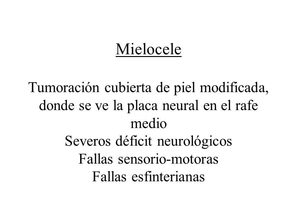 Mielocele Tumoración cubierta de piel modificada, donde se ve la placa neural en el rafe medio Severos déficit neurológicos Fallas sensorio-motoras Fa