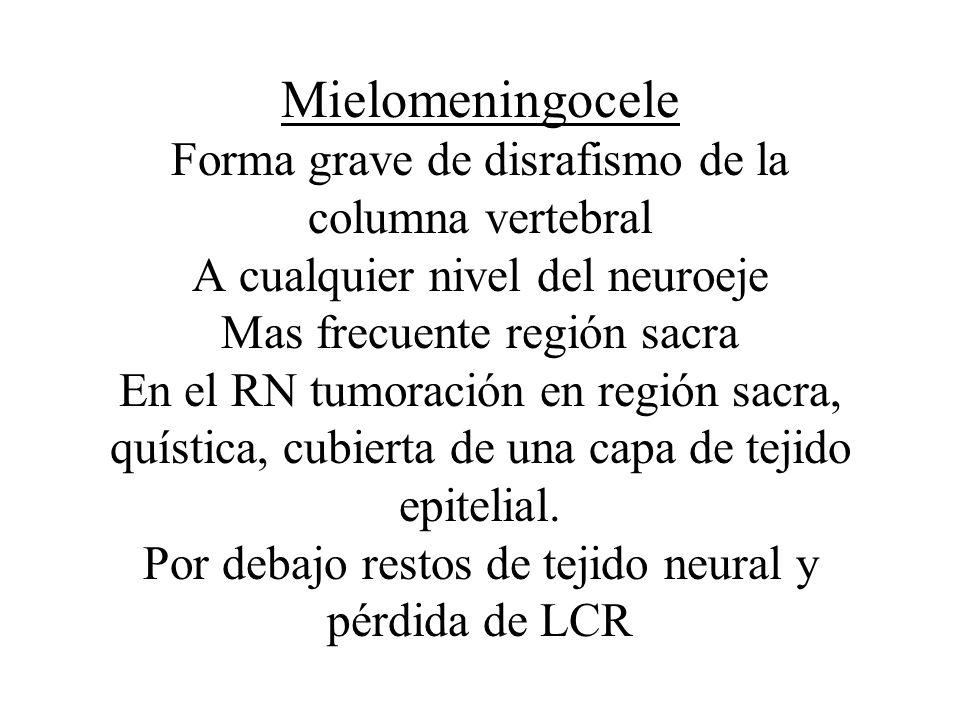 Mielomeningocele Forma grave de disrafismo de la columna vertebral A cualquier nivel del neuroeje Mas frecuente región sacra En el RN tumoración en re