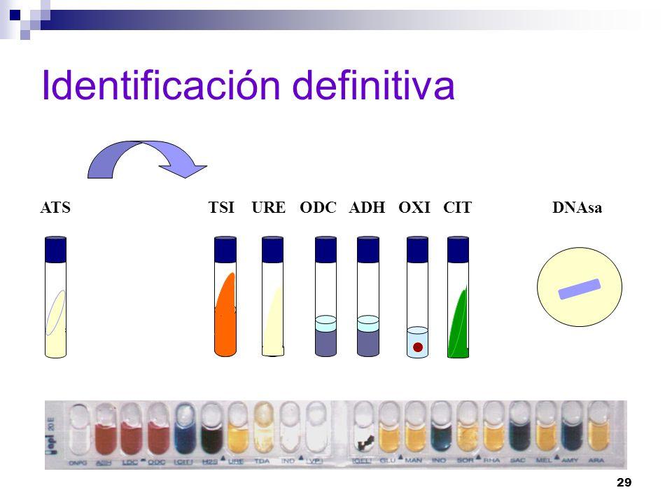 29 Identificación definitiva TSI URE ODC ADH OXI CIT DNAsaATS