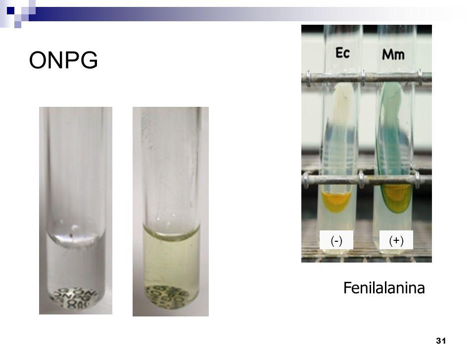 31 ONPG Fenilalanina (-)(+)