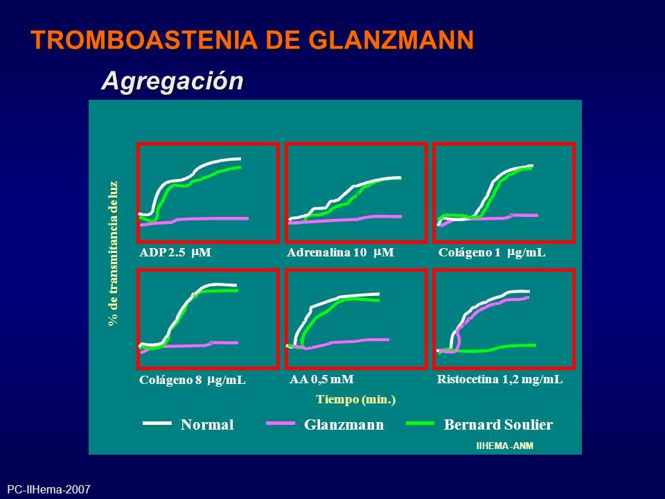 NormalBernard SoulierGlanzmann ADP 2.5 MAdrenalina 10 MColágeno 1 g/mL Colágeno 8 g/mL AA 0,5 mMRistocetina 1,2 mg/mL % de transmitancia de luz Tiempo