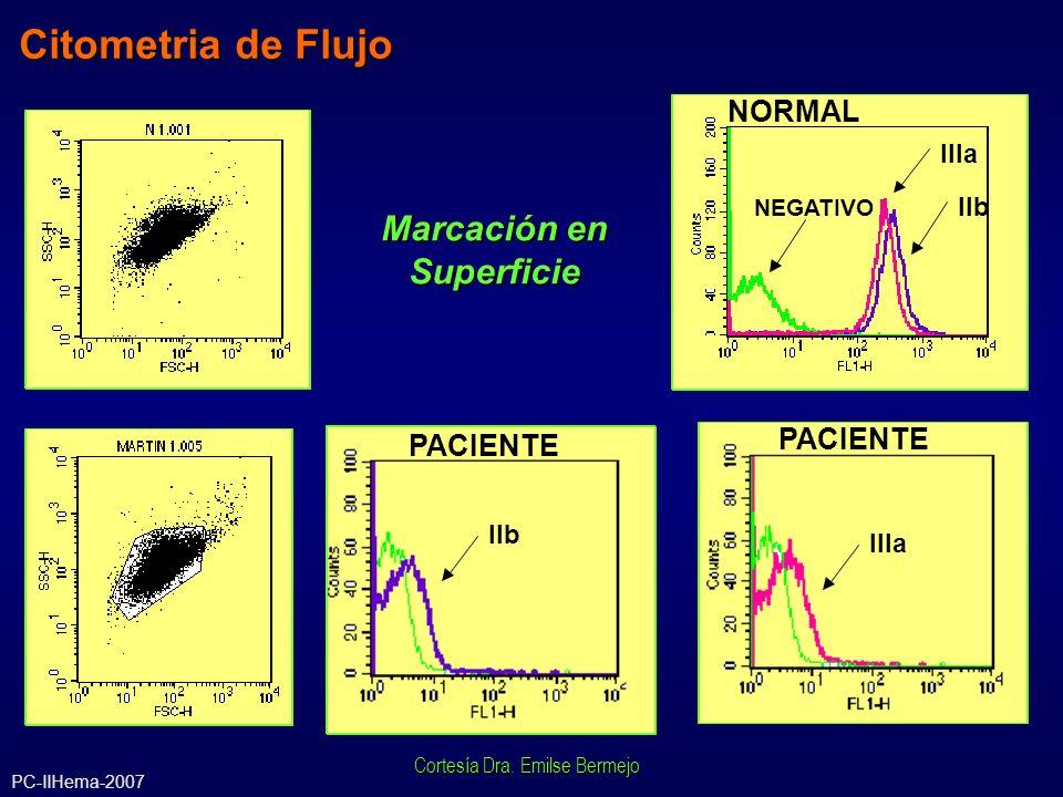 Citometria de Flujo Marcación en Superficie NEGATIVO IIIa IIb IIIa IIb IIIa NORMAL PACIENTE Cortesía Dra. Emilse Bermejo PC-IIHema-2007