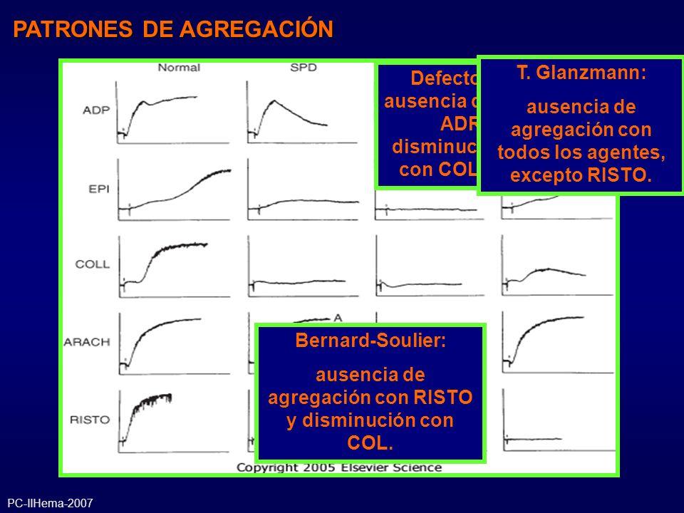 Defectos de liberación: ausencia de 2° ola con ADP y ADR, ausencia o disminución de agregación con COL y normal con AA PATRONES DE AGREGACIÓN Bernard-