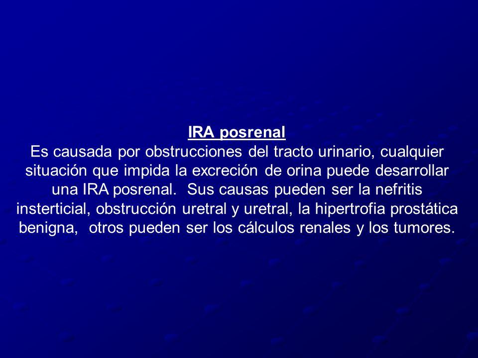 IRA posrenal Es causada por obstrucciones del tracto urinario, cualquier situación que impida la excreción de orina puede desarrollar una IRA posrenal