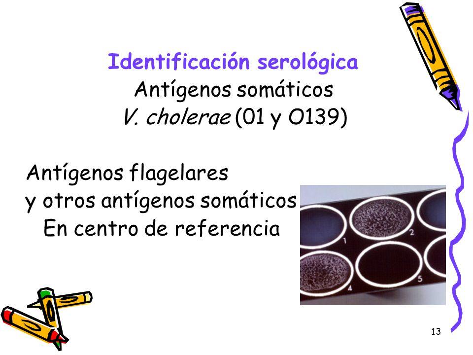 13 Identificación serológica Antígenos somáticos V. cholerae (01 y O139) Antígenos flagelares y otros antígenos somáticos En centro de referencia
