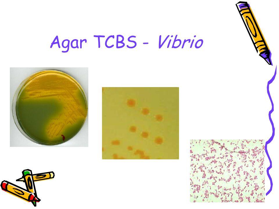 9 Agar TCBS - Vibrio