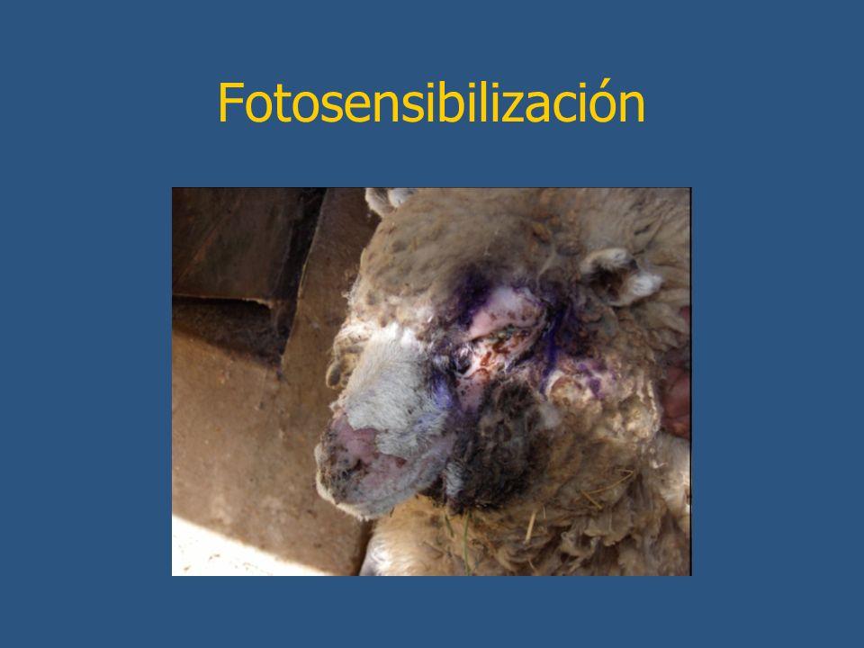 Fotosensibilización