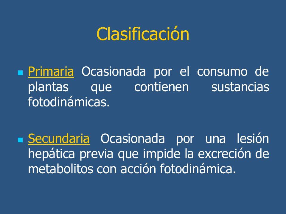 Clasificación Primaria Ocasionada por el consumo de plantas que contienen sustancias fotodinámicas. Secundaria Ocasionada por una lesión hepática prev