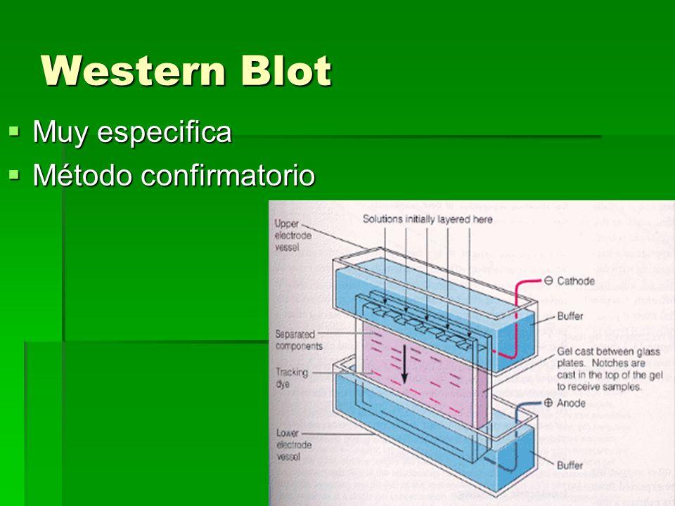 Western Blot Muy especifica Muy especifica Método confirmatorio Método confirmatorio
