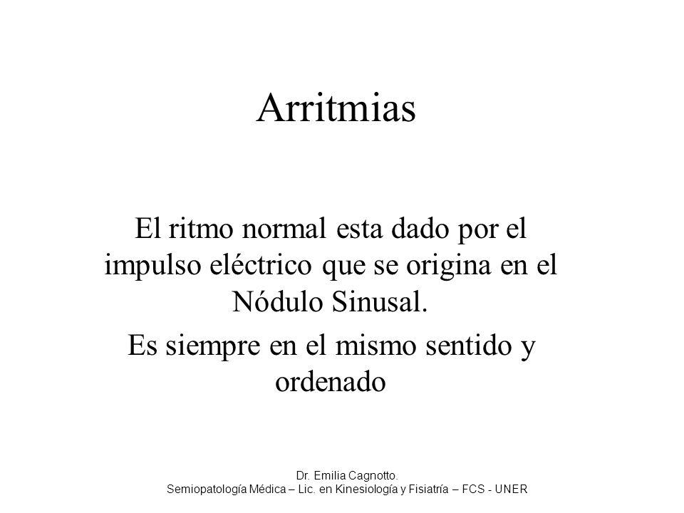 Arritmias El ritmo normal esta dado por el impulso eléctrico que se origina en el Nódulo Sinusal. Es siempre en el mismo sentido y ordenado Dr. Emilia