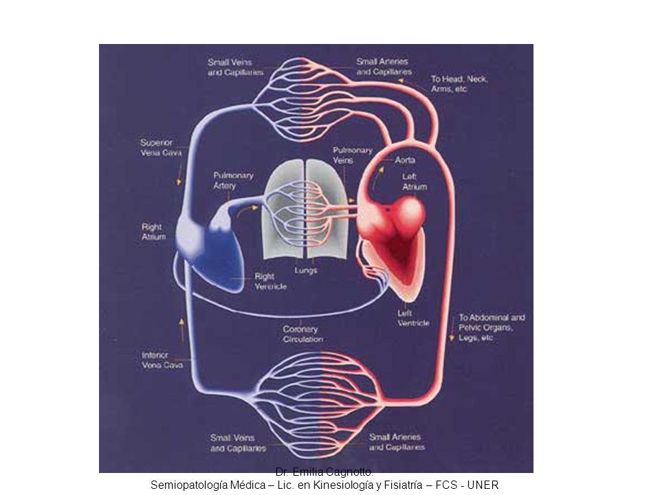 La lesión ateroesclerótica, produce obstrucción de la luz arterial y espasmos en las arterias coronarias Dr.