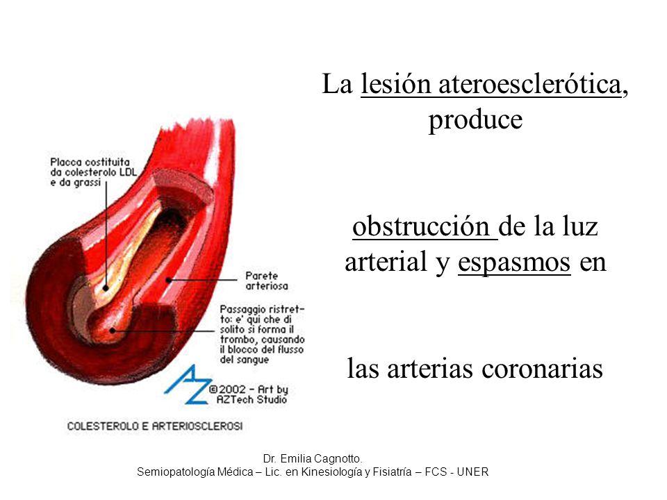 La lesión ateroesclerótica, produce obstrucción de la luz arterial y espasmos en las arterias coronarias Dr. Emilia Cagnotto. Semiopatología Médica –
