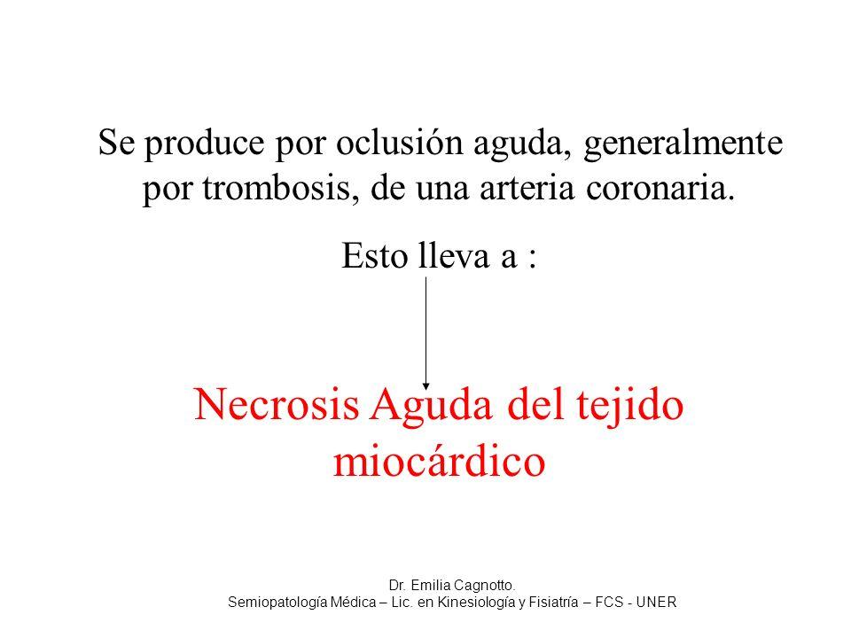 Se produce por oclusión aguda, generalmente por trombosis, de una arteria coronaria. Esto lleva a : Necrosis Aguda del tejido miocárdico Dr. Emilia Ca