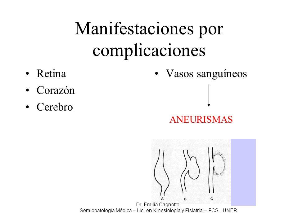 Manifestaciones por complicaciones Retina Corazón Cerebro Vasos sanguíneos ANEURISMAS Dr. Emilia Cagnotto. Semiopatología Médica – Lic. en Kinesiologí