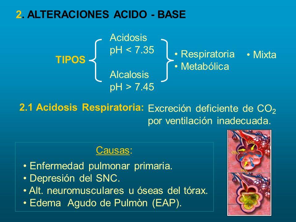 Acidosis Respiratoria pH = < 7.35 PaCO 2 = > 45 mmHg Ventilación Inadecuada Excreción CO 2 Suele PaO 2 Concentración CO 2 (Hipercapnia) H 2 CO 3 (acido carbònico) a) Acidosis Respiratoria Aguda: 2.