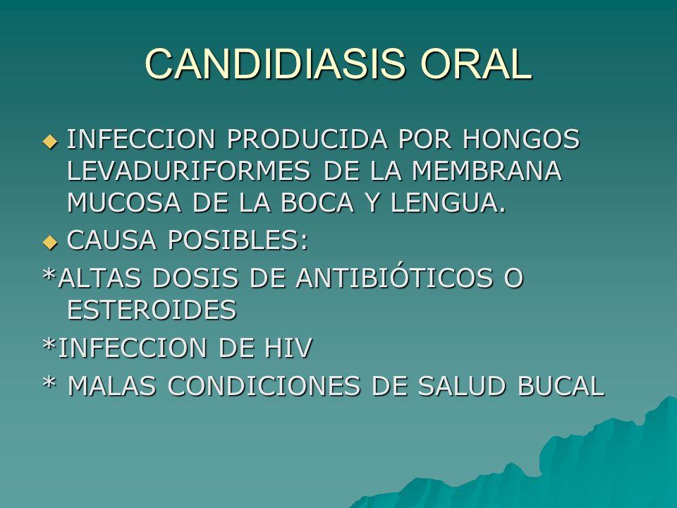 CANDIDIASIS ORAL INFECCION PRODUCIDA POR HONGOS LEVADURIFORMES DE LA MEMBRANA MUCOSA DE LA BOCA Y LENGUA. INFECCION PRODUCIDA POR HONGOS LEVADURIFORME