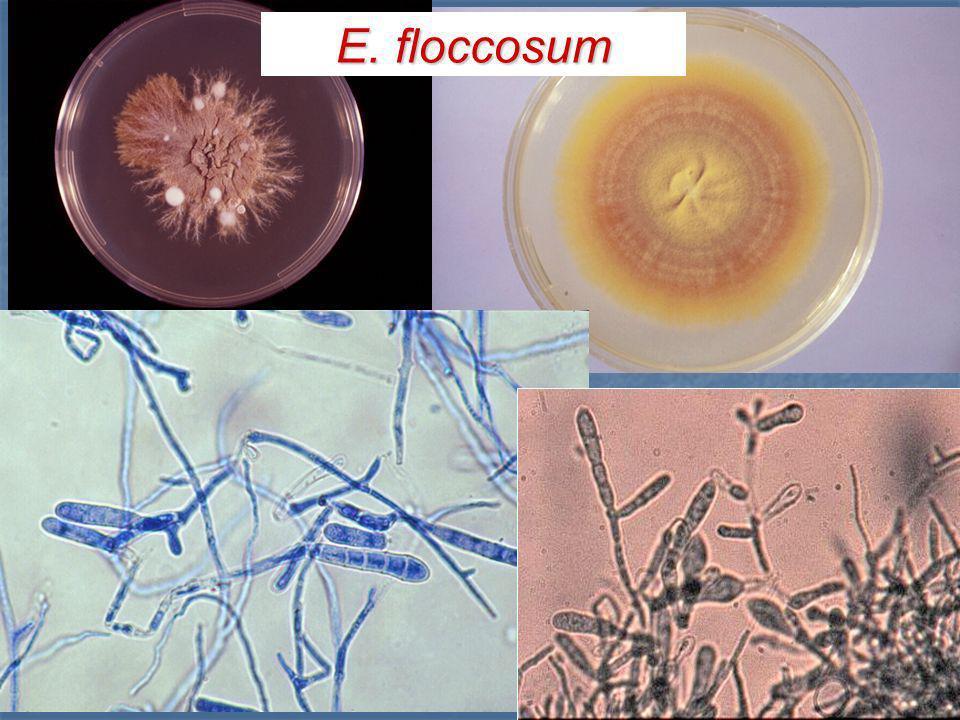 Género Epidermophyton E. floccosum Macroconidios : Macroconidios : ampliamente clavados, extremos redondeados, paredes lisas y delgadas con 1-4 septos