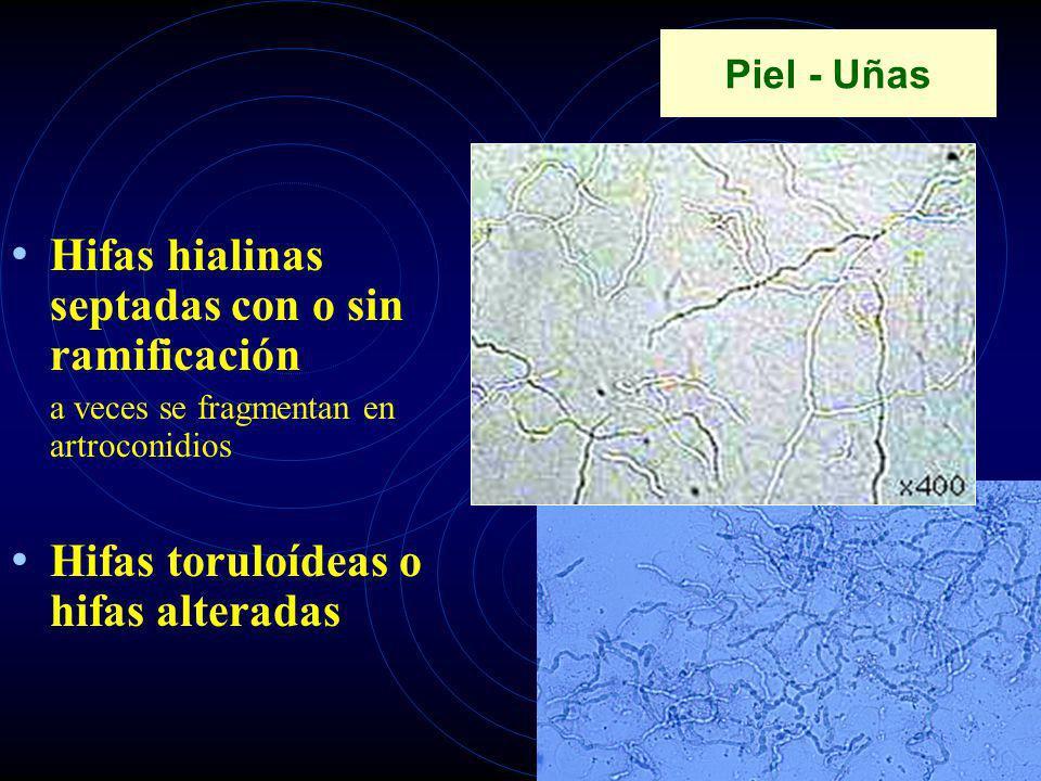 Piel - Uñas Hifas hialinas septadas con o sin ramificación a veces se fragmentan en artroconidios Hifas toruloídeas o hifas alteradas