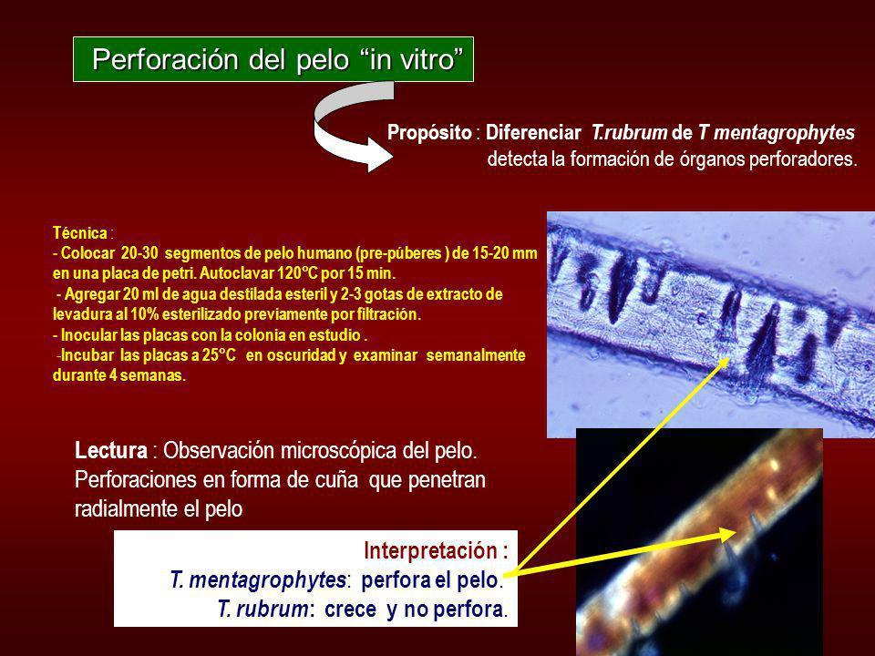 Determinación de caracteristicas fisiológicas o bioquímicas Prueba de la ureasa Agar urea de Christensen: diferencia diferencia T rubrum de T. mentagr